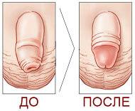 обрезание у мужчин до и после